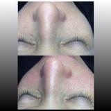 Higiene facial con Microdermabrasion - foto