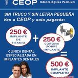 Implante dental de titanio precio barato - foto