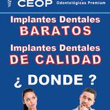 Implantes dentales  250  lo que buscas - foto