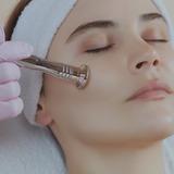 Limpieza facial profunda c/puntas de dia - foto