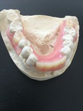 prótesis dentales - foto