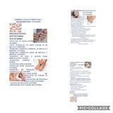 Tratamiento  Faciales con Dermobrasion - foto