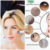 tratamientos faciales - foto
