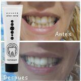 ¿Quieres unos dientes más blancos? - foto