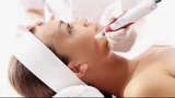Higiene facial + dermapen (50 ) - foto