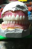 Dentaduras y reparaciones - foto