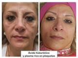 Plasma facial  Rico en plaquetas. - foto