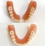 Protesis dental - foto