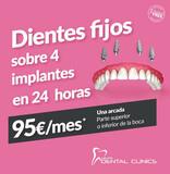 Clínica Dental en Roquetas de Mar - foto