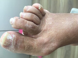 Manicura & pedicura Especialista en pies - foto