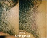50 euros micropigmentacion capilar - foto