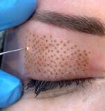 Técnico micropigmentacion/microblading - foto
