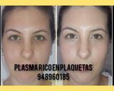 plasma rico en plaquetes  - foto