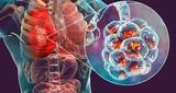 Legionella - foto
