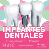 Implantes Dentales - foto