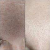 higiene facial femenina - foto