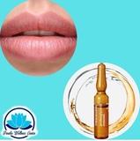 promoción labios mayo - foto